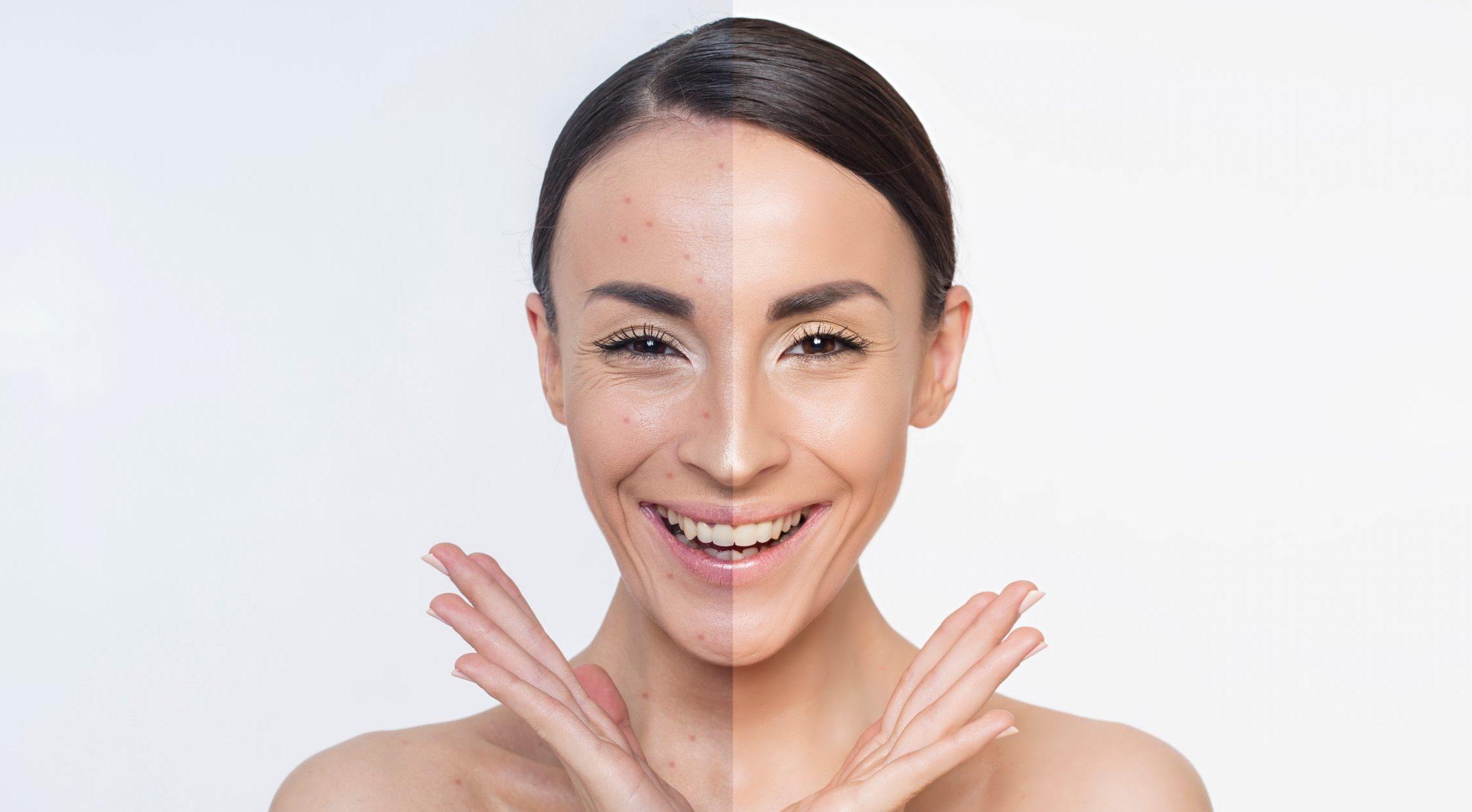 Natural holistic acne treatment