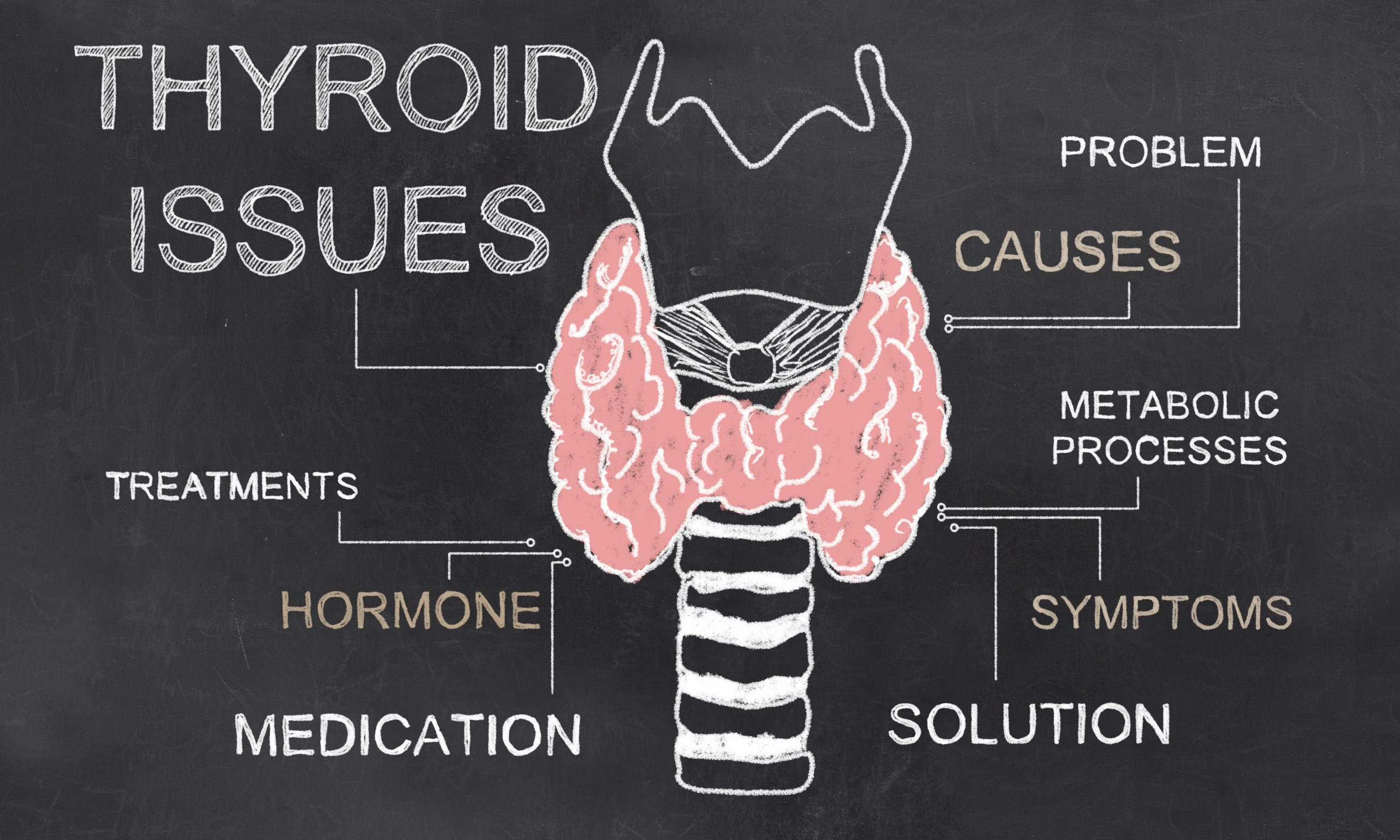 Thyroid disease doctor dallas