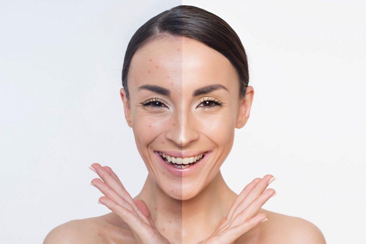 Acné. Problemas en la piel. Dos mitades diferentes de la cara. Retrato de cerca de una hermosa joven con la piel limpia y fresca. Maquillaje. Cosmética y cosmetología. Cuidado de la piel. Salud de la Mujer.